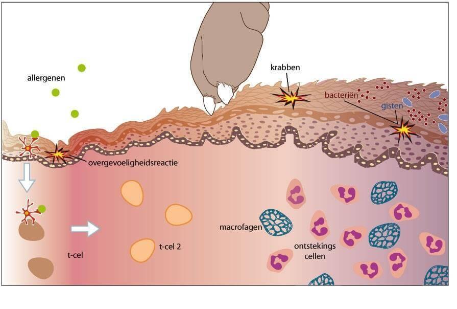 pathogenese atopie